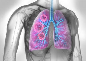 Lunge mit Tumor - Symboldarstellung